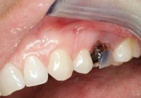 Implantat case