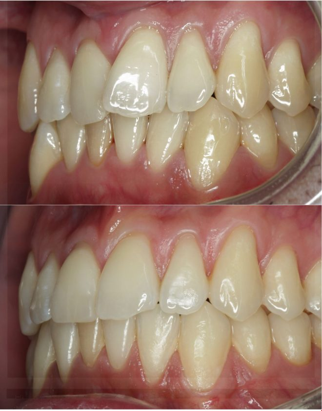 Endring etter tannregulering